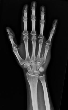 radiografc3ada-de-la-mano