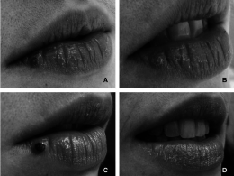 FIG-2-A-Venous-lake-on-the-right-lower-lip-in-a-25-year-old-woman-B-Photograph