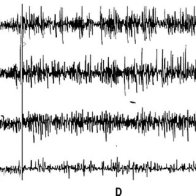 Electrophysiological-recoding-W-wakefulness-D-drowsiness-SWS-slow-wave-sleep_Q320